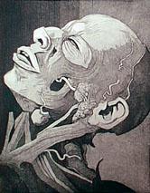 cadaver-muerto