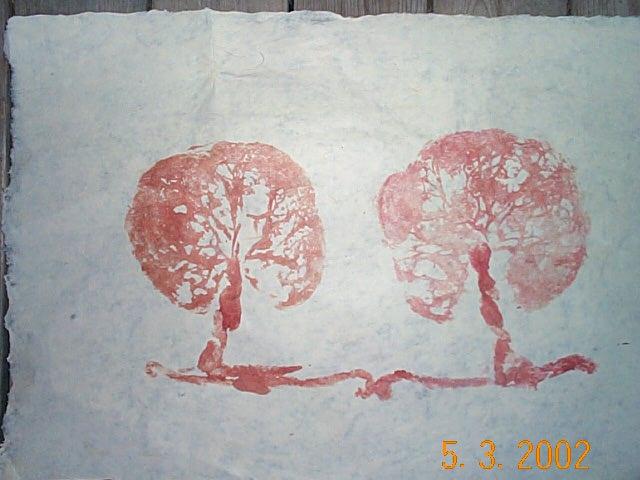 placenta-dibujos
