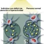 El trastorno por déficit de atención con hiperactividad (TDAH)