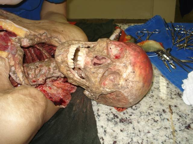 piranas hombre huesos 1