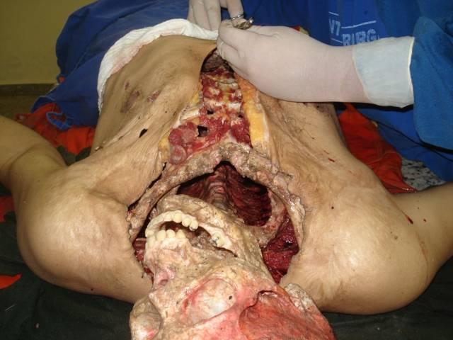 piranas hombre huesos 6