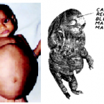 Fetus in fetu