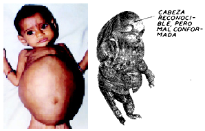 fetus in fetu feto
