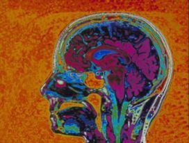 epilepsia cerebro