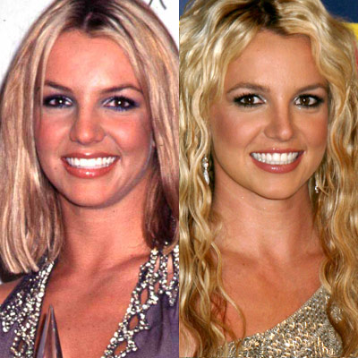 britney spears_antes_despues_operacion