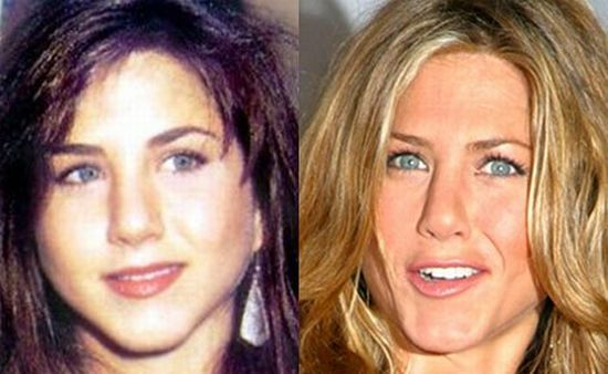 jennifer aniston_antes_despues_operacion