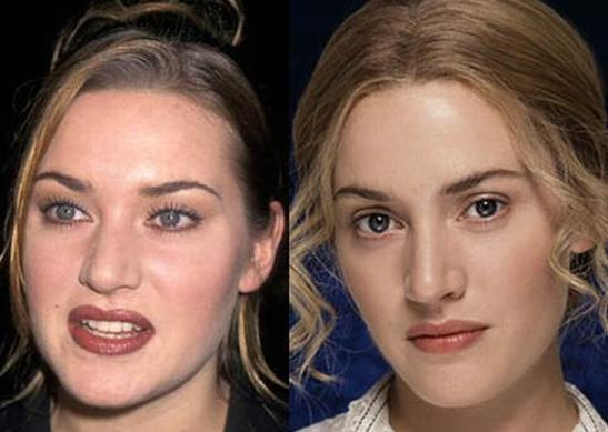 kate_winslet_antes_despues_operacion