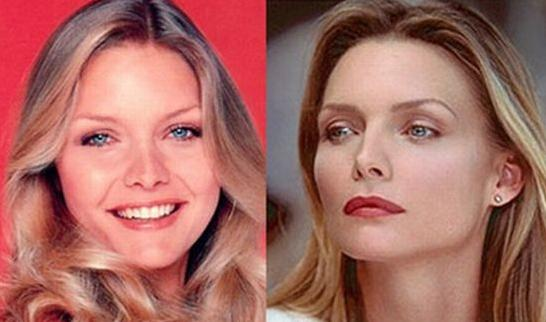 michelle_pfeiffer_antes_despues_operacion