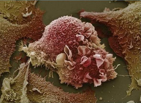 cuerpo-humano-microscopio-celula-cancer-pulmon