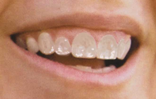 dientes-teeth-fluor