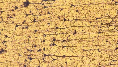 celulas-cerebrales-imagen