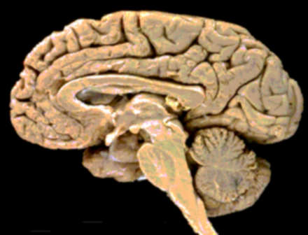 cerebro-organo-brain