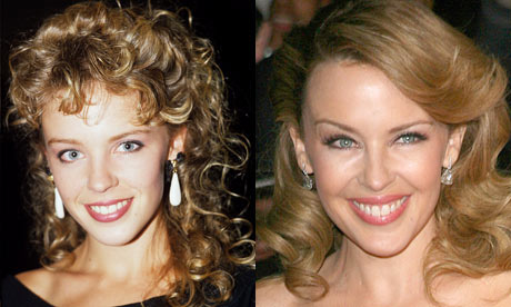 kylie minogue antes despues