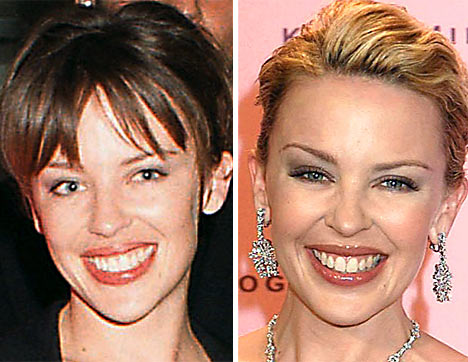kylie minogue before after