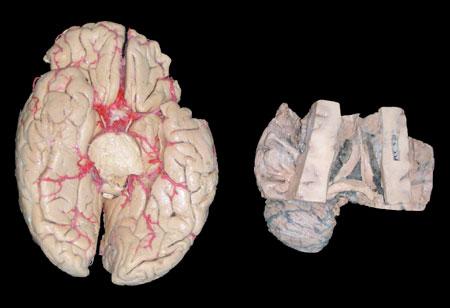 plastinacion-cerebro-polimero-formalin