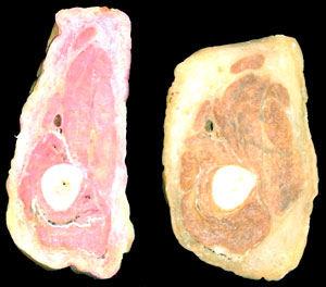 platinacion-cuerpo-seccionado-laminas