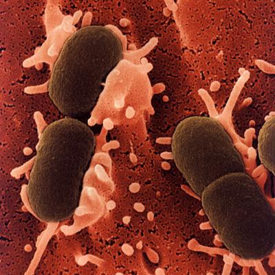 escherichia-e-coli imagen