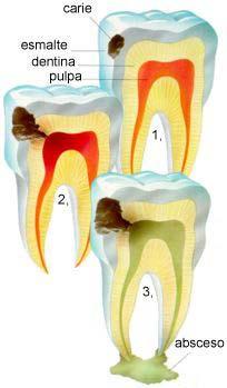 caries-dientes-sanos-encias
