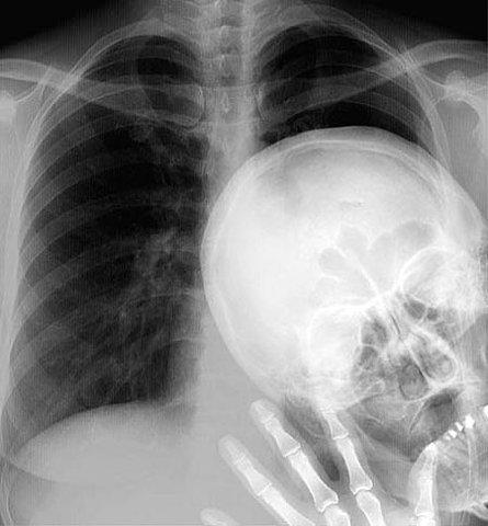 imagenes humor internet radiografia