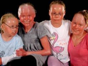 Ictiosis arlequin harlequin familia
