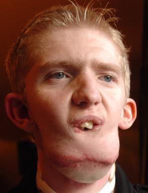 alan-doherty-mandibula-implante
