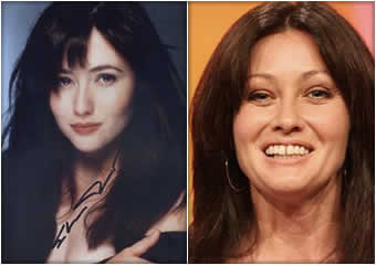 shannen-doherty-brenda-walsh-antes-despues
