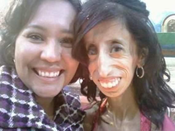 Lizzie Velasquez problema peso delgadez