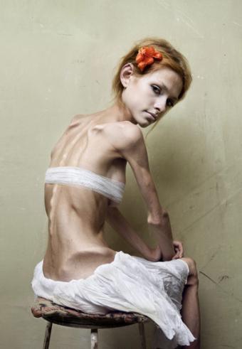 bulimia-anorexia-mia-ana
