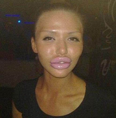 labios grandes operacion mal operados