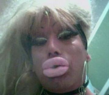 operacion labios fallida mal operada