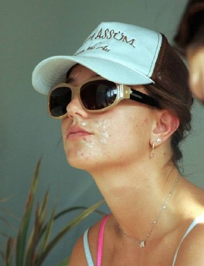 britney spears granos acne
