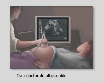 transductor sonidos ecografias