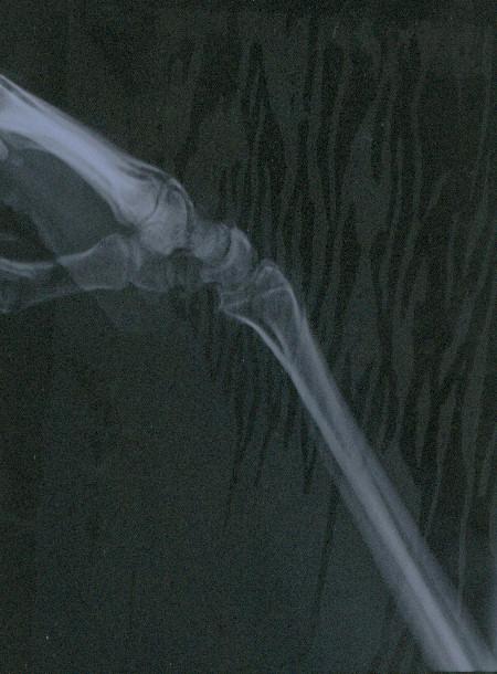 radiografia-mano