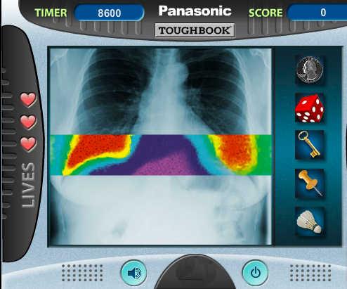 juego-hospital-radiografias