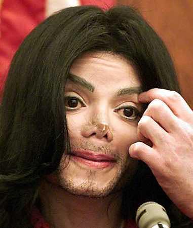 michael jackson cirugia