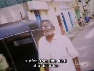 microencefalia india