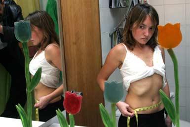 anorexia desorden