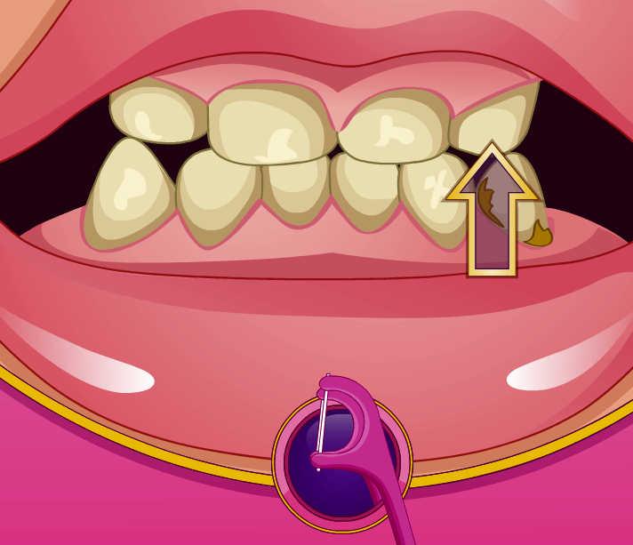 juego-doctor-dentista