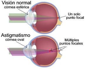 astigmatismo retina cornea