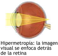 hipermetropia retina