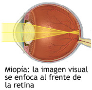 miopia retina