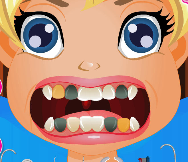 juego-dentista-polly-pocket