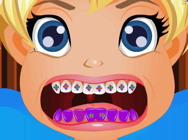 juego-hospital-dentista-polly-pocket