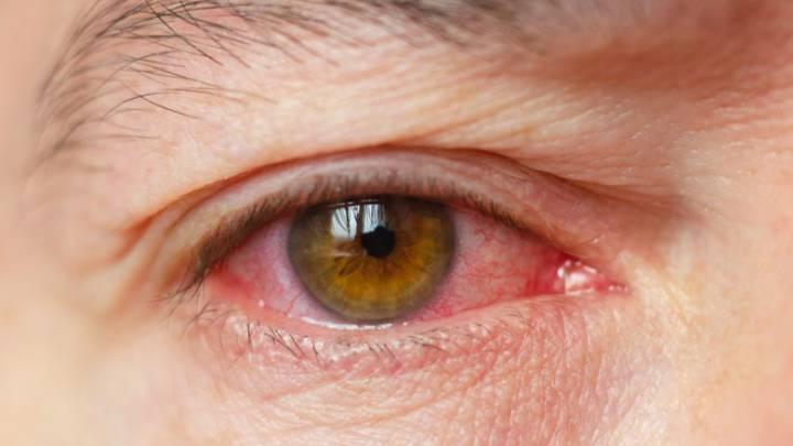 coronavirus covid-19 ojos contagio